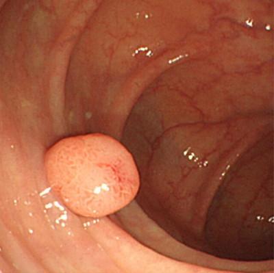 下部内視鏡(大腸カメラ)の写真