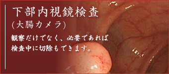 下部内視鏡検査(大腸カメラ)観察だけでなく、必要であれば検査中に切除もできます。